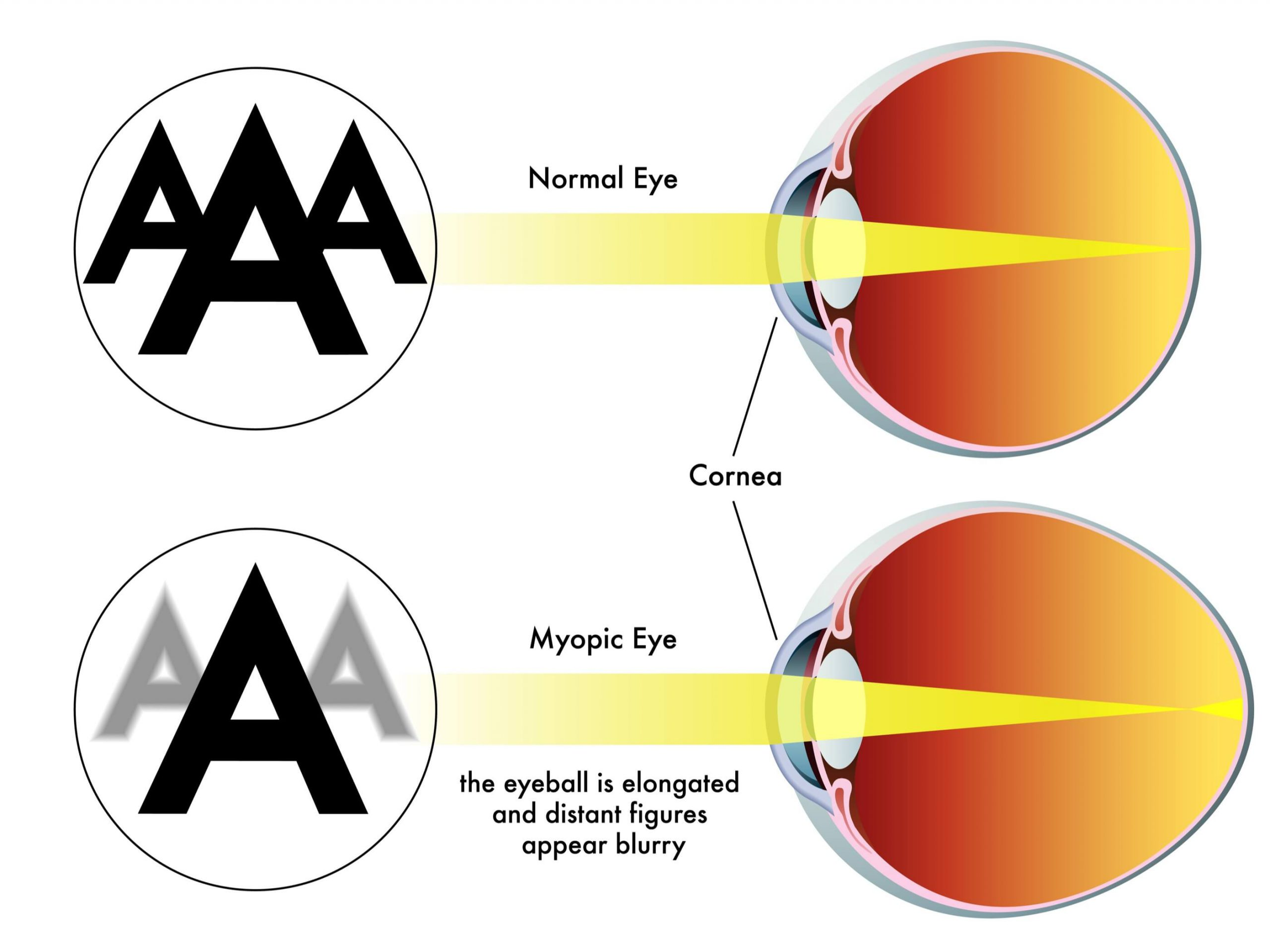 Myopia Management Knoxville